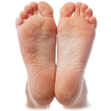 voetklachten eeltvorming