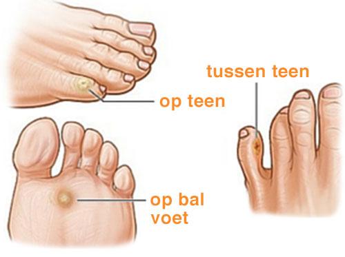 voetklachten likdoorn