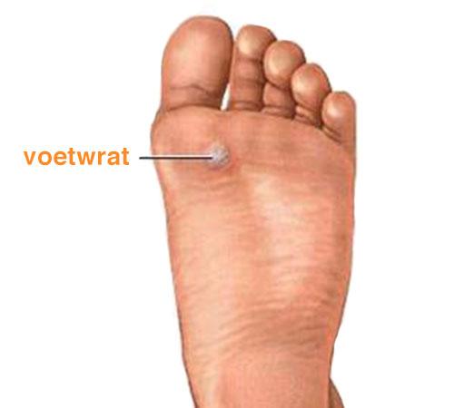 voetklachten voetwrat